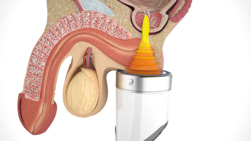 shockwave therapy for prostatitis and erectile dysfunction
